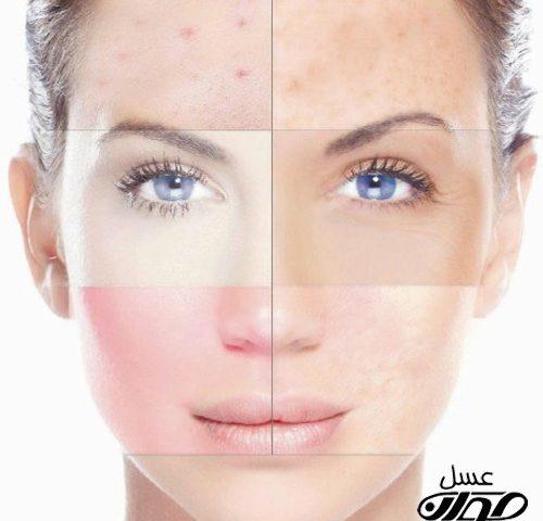 درمان لکه های سفید پوست