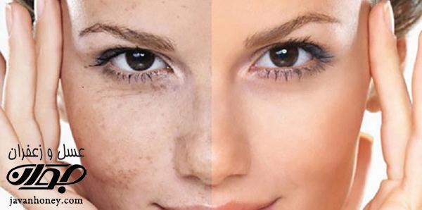 ماسک عسل برای شفافیت پوست